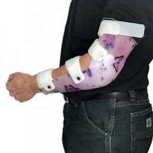 Orthèse passive monocoque  du coude